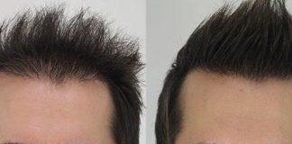 The scientific basis behind hair transplants in Turkey